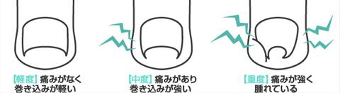 B/Sスパンゲの調整修理など:¥525〜¥1,050(税込)装着後1週間以内に外れた場合は、無料にて交換します。巻き込みの状態により2枚装着する場合もあります。2枚目は¥1,000割引となります。